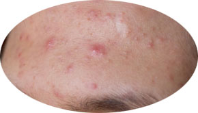 Acne Treatments - Acne Removal Laser Treatment at Specialist Skin Clinic Cardiff Newport Brigeng Bristol England