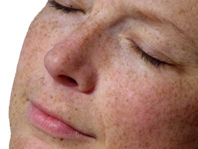 Facial Body Pigmentation removal Freckles removal Specialist Skin Clinic Cardiff UK's leading clinics experts in pigmentation