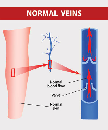 Best Removal Treatment for Varicose veins spider veins thread veins @ Specialist skin Clinic Cardiff