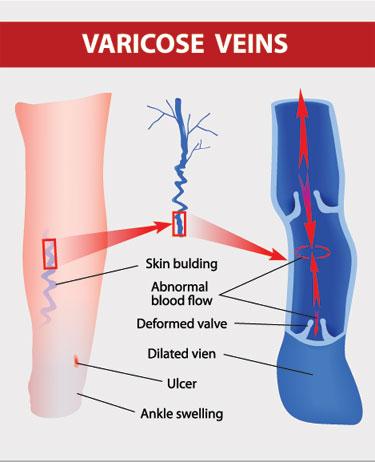 Varicose veins spider veins thread veins Removal Specialist skin Clinic Cardiff
