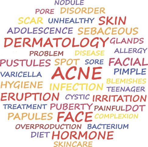 best acne treatment in Cardiff-Newport-Bridgend-South-Wales-Bristol-London-Cheltenham-Gloucester-England-United-Kingdom
